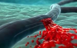Геморрагический инсульт - повреждение сосудов