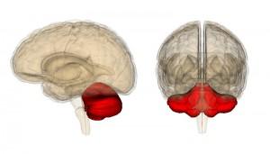 Инсульт мозжечка и ствола головного мозга