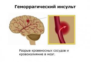 Симптомы геморрагического инсульта и его последствия