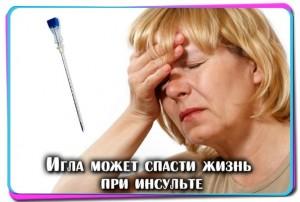 Иглоукалывание при инсульте