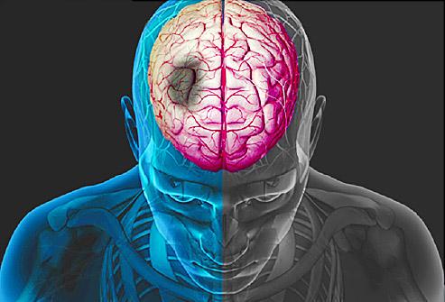 Определение предвестников инсульта