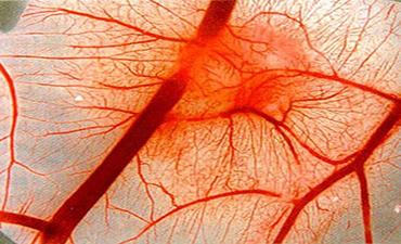 Симптомы и лечение мешотчатой аневризмы