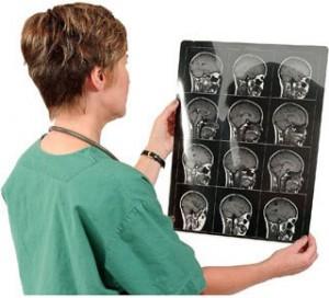 Факторы риска инсульта головного мозга