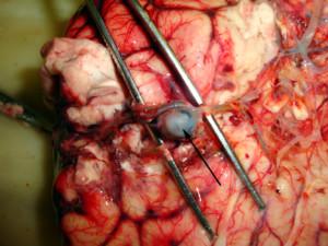Мешотчатая аневризма головного мозга