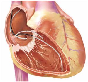 Аневризма межпредсердной перегородки патология сердца