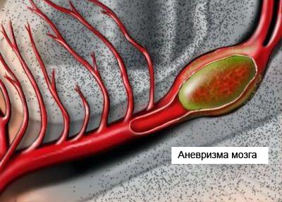 Операция клипирования аневризмы головного мозга и ее последствия