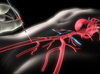 Как и зачем делают коронарографию сосудов сердца