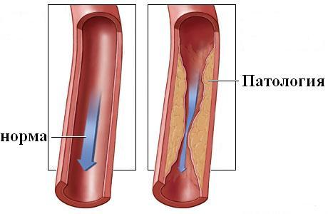 Симптомы и лечение окклюзии сосудов и артерий