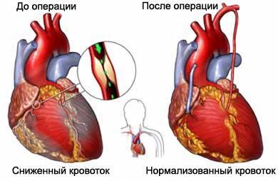 Проведение шунтирования сосудов сердца и послеоперационный период