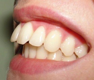 Причины и лечение дистальной окклюзии зубов