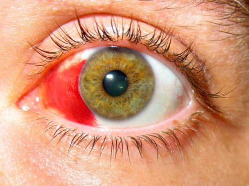 Причины, последствия кровоизлияния в склеру глаза