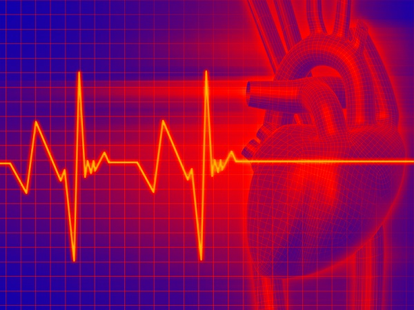 Что значит тахикардия сердца?