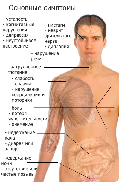 rasseyanniy-skleroz-simptomi