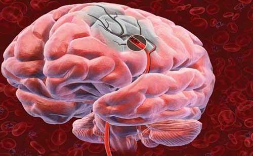 Что такое лакунарный инфаркт головного мозга