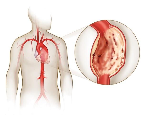 Аорты сосудов сердца: симптомы, лечение