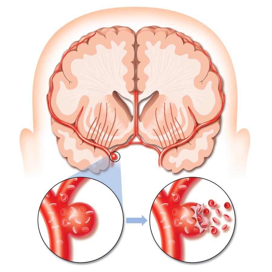 Симптомы при инсульте