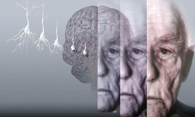Что делать при появлении симптомов старческой деменции?