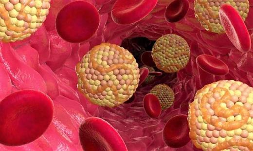 Снижение холестерина в домашних условиях без лекарств: диета, народные средства