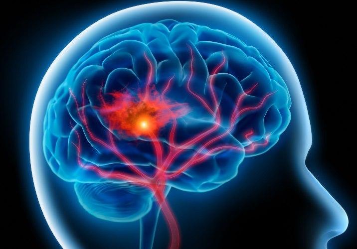 Инсульт ствола головного мозга — чем опасен и что важно знать?
