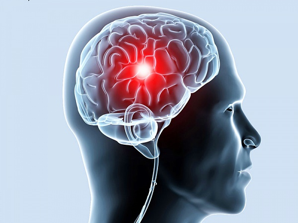 Ишемия головного мозга — что это, причины, симптомы