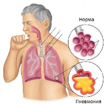 Пневмония: симптомы, диагностика и методы лечения