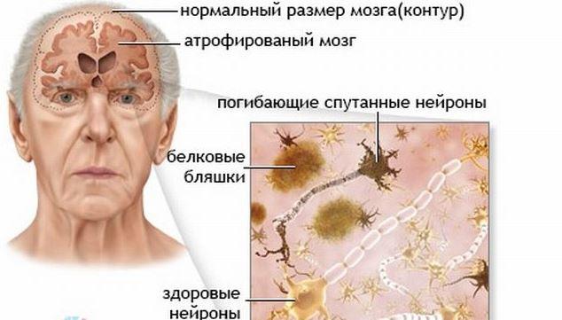Причины и симптомы гибели клеток головного мозга и что делать