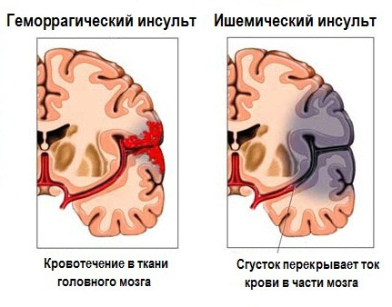 Проявления инсульта: как распознать удар?