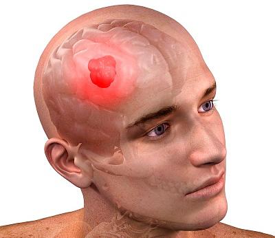 Глиобластома головного мозга