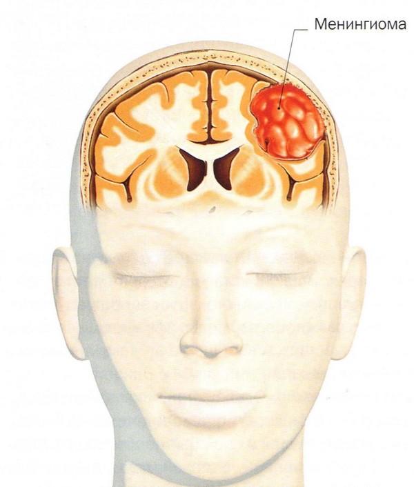 Шансы и операция при менингиоме головного мозга