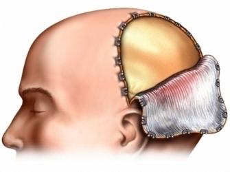 Операция на головном мозге после инсульта-когда можно проводить