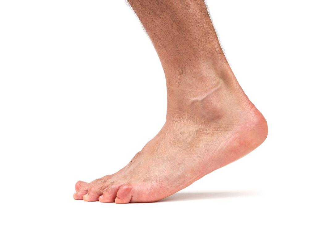 Контрактура голеностопного типа суставов